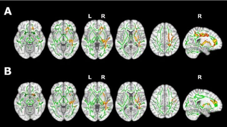 El insomnio provoca cambios cerebrales relacionados con etapas tempranas del alzhéimer